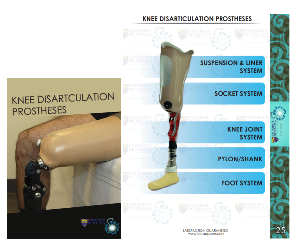 knee-diarticulation-prosthesis-both diagrams