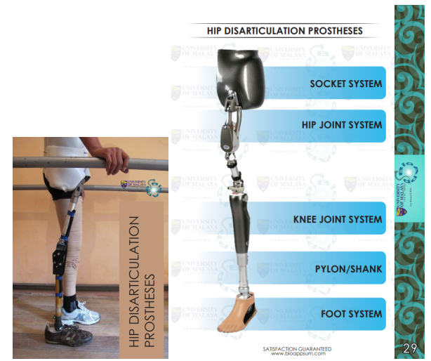 prosthesis-hip-disarticulation-both diagrams