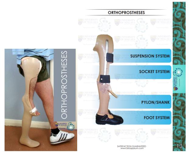 prosthesis-orthoprosthesis-both diagrams