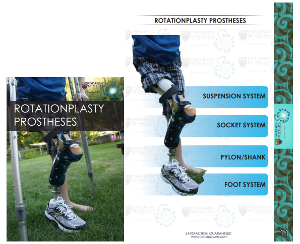 prosthesis-rotationplasty-both diagrams