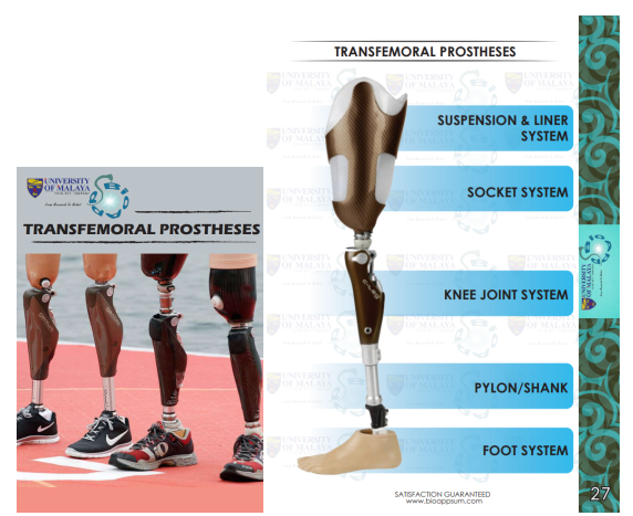 prosthesis-transfemoral-both diagrams
