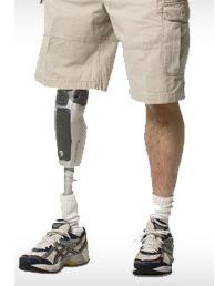 prosthetics-leg